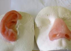 prothèse faciale Charleroi