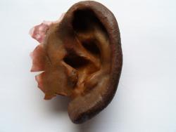 prothèse d\'oreille Charleroi