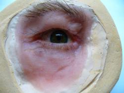 prothèse oculaire Charleroi