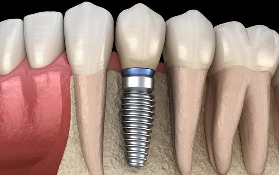 Prothésiste dentaire Charleroi